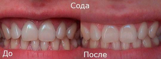 Отбеливание зубов в домашних условиях Skarletta.ru