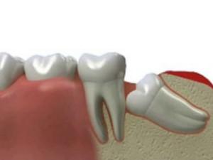 Зуб-мудрости-2