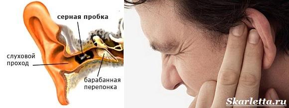 Как-чистить-уши-6