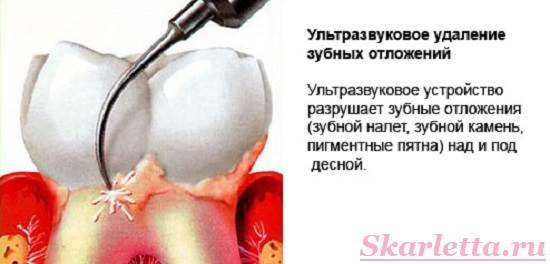 Механическое снятие зубного камня