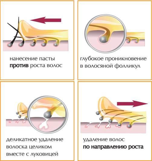 Шугаринг-в-домашних-условиях-Как-правильно-делать-8