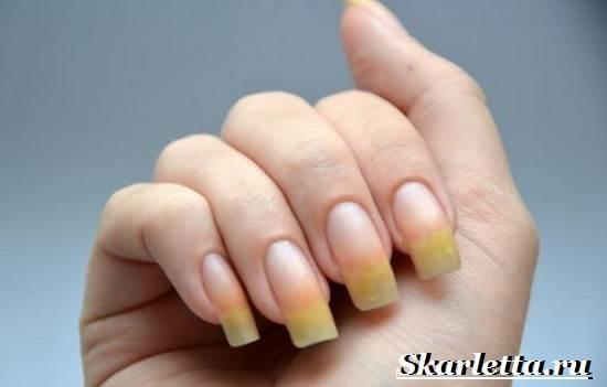 Почему-желтеют-ногти-22