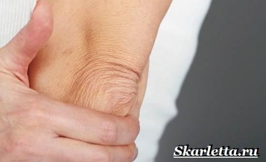 Сухая-кожа-на-локтях-Причины-уход-и-лечение-сухой-кожи-на-локтях-2